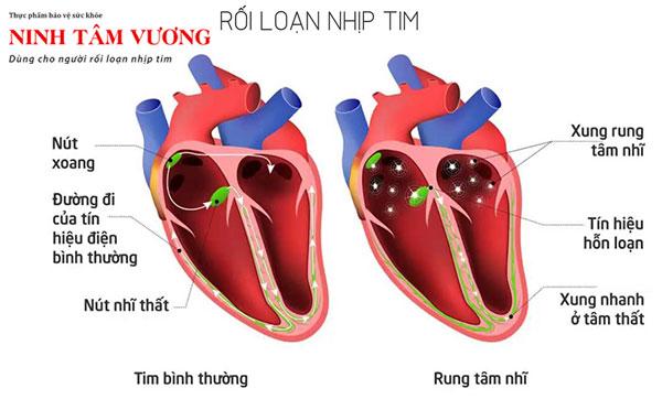 Rối loạn nhịp tim là một trong các nguyên nhân chính khiến tim đập nhanh.