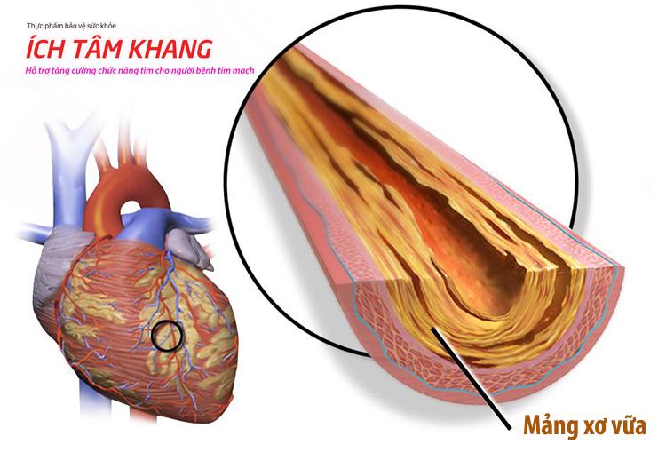 Mảng xơ vữa làm cho mạch vành bị hẹp