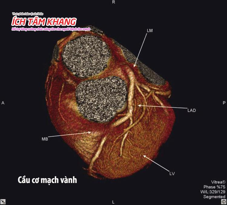Một đoạn mạch vành nằm ẩn dưới cơ tim thay vì nằm trên bề mặt