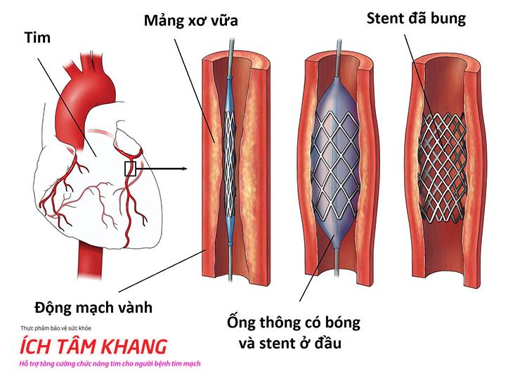 Đặt stent mạch vành được áp dụng khi bị thiếu máu cơ tim nặng hoặc có nguy cơ nhồi máu do mảng xơ vữa.