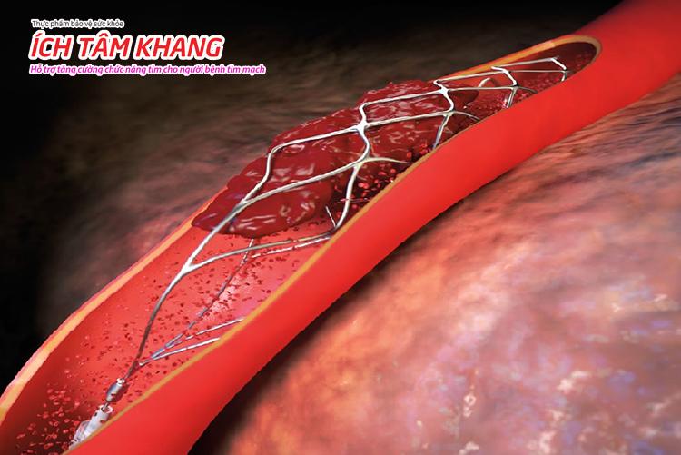 Cục máu đông hình thành trên stent là trường hợp cấp cứu khẩn cấp.