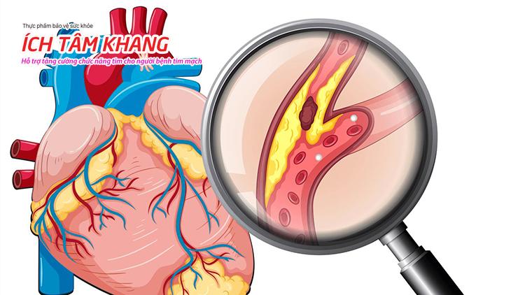 Hình ảnh các động mạch vành bị xơ vữa.