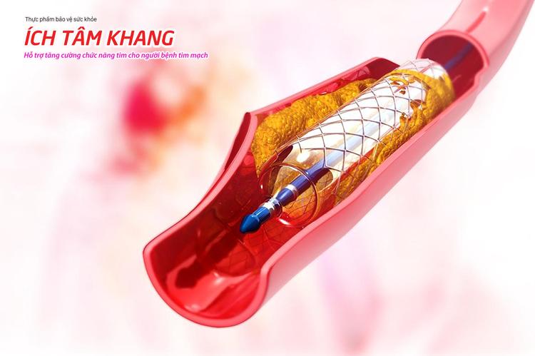 Can thiệp, phẫu thuật không chữa khỏi hoàn toàn xơ vữa động mạch vành.