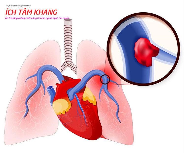 Cục máu đông do rung tâm nhĩ có thể theo dòng máu đi khắp cơ thể