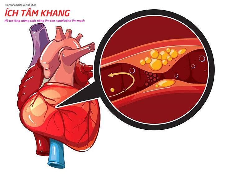 Tắc hẹp mạch vành gây giảm lượng máu nuôi cơ tim