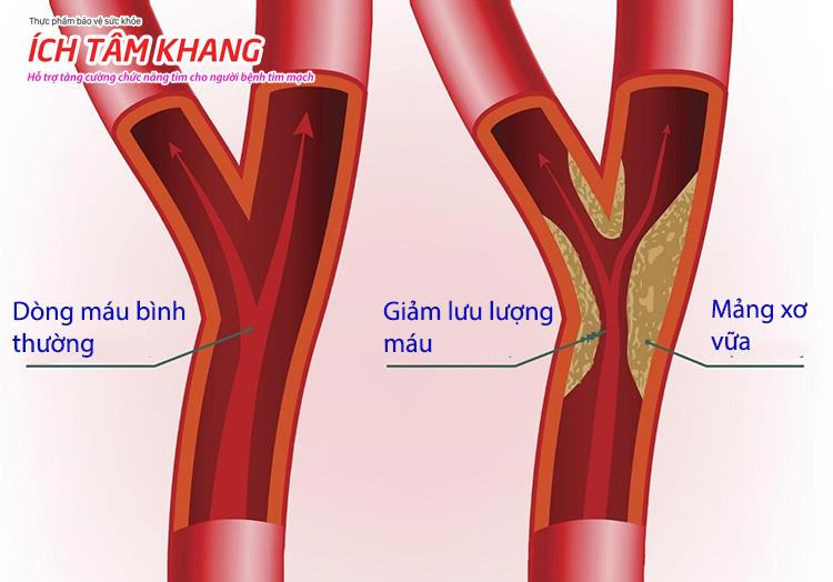 Hai động mạch vành lớn cung cấp máu mang oxy cho cơ tim bị thu hẹp bởi mảng xơ vữa