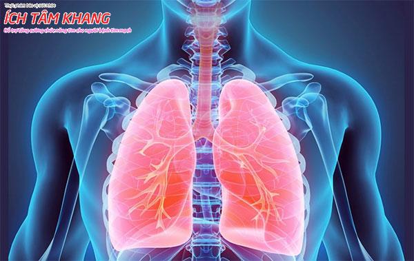Suy tim cấp có thể gây biến chứng phù phổi cấp