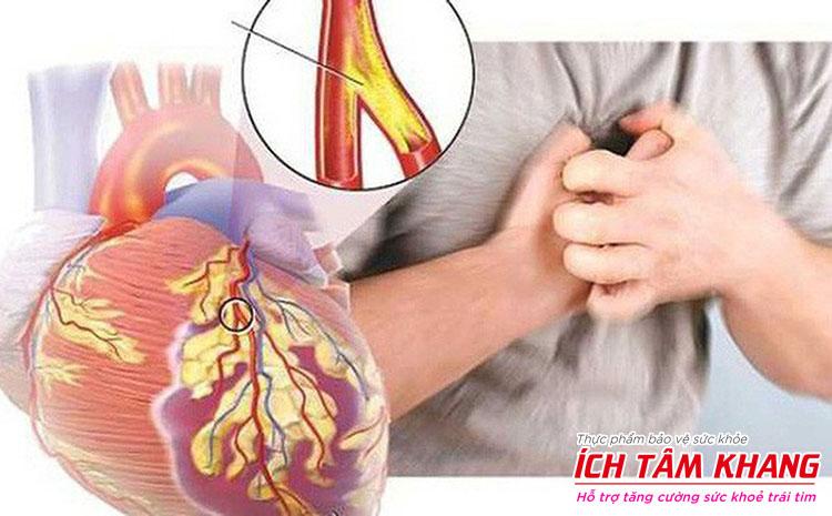 Người bệnh mạch vành là đối tượng thường phải sử dụng Vastarel.