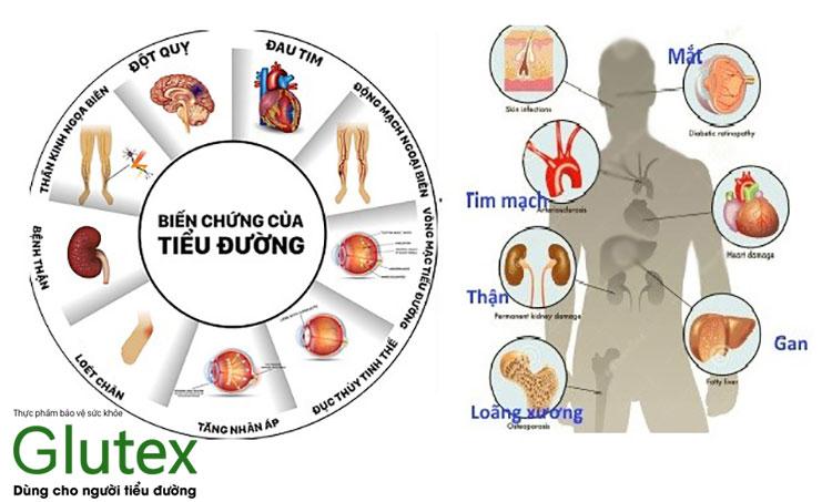 Biến chứng mạn tính có thể gặp ở mọi cơ quan trong cơ thể