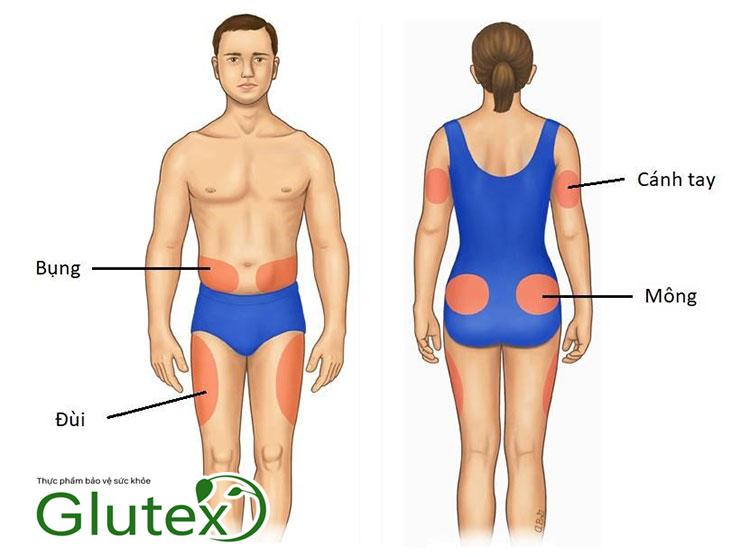Các vị trí tiêm insulin để thay đổi tránh tác dụng phụ loạn dưỡng mỡ dưới da.