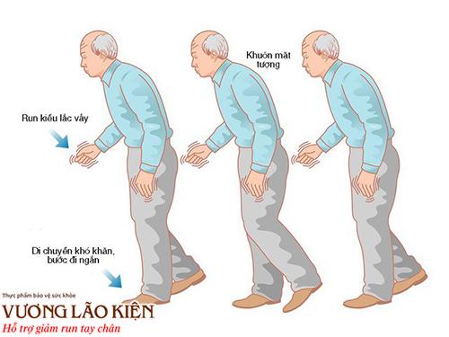 Run rẩy tay chân, co cứng cơ và chậm vận động là ba triệu chứng điển hình của Parkinson
