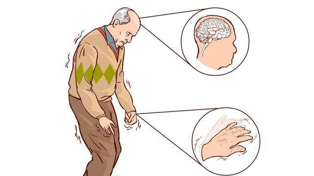 Sự thiếu hụt chất dẫn truyền thần kinh có tên dopamin trong não là nguyên nhân gây run tay chân, cứng cơ và nhiều biểu hiện khác ở người bệnh Parkinson