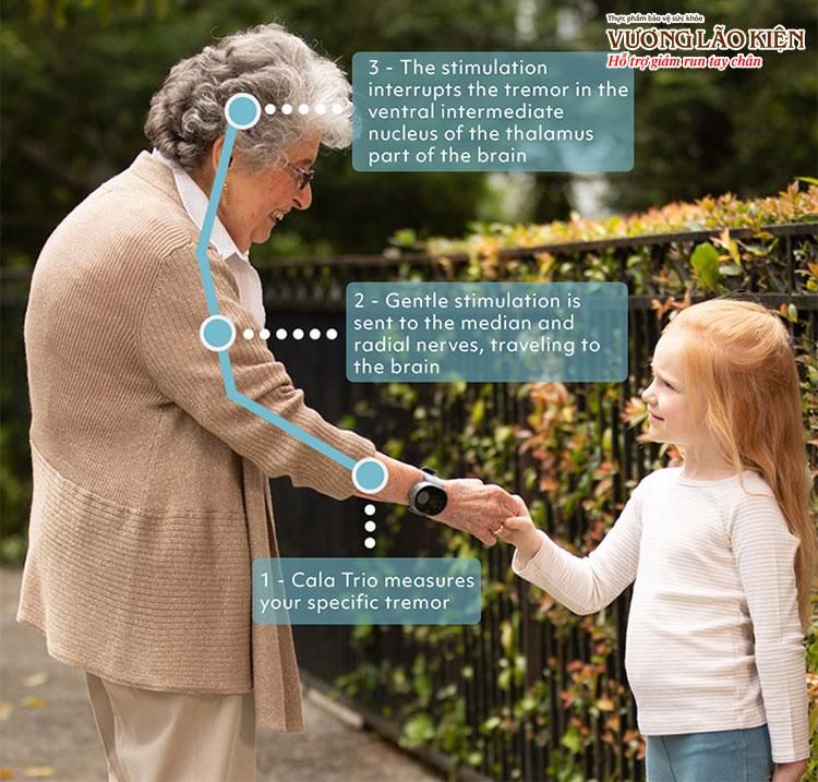 Khi được kích hoạt, thiết bị sẽ truyền tín hiệu lên não để giảm run tay