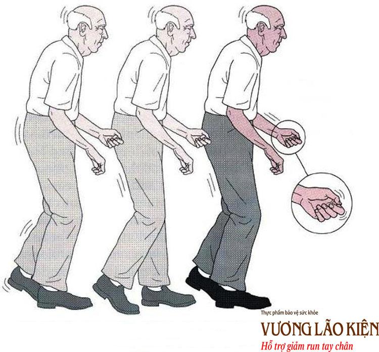 Hội chứng Parkinson cũng có các triệu chứng run, cứng và chậm tương tự bệnh Parkinson