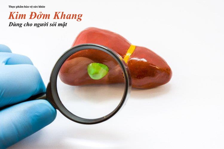 Polyp túi mật là những khối u lành tính bên trong túi mật