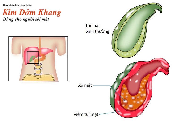 Viêm túi mật - biến chứng thường gặp do sỏi mật gây ra