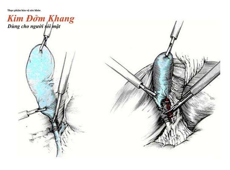 Mổ cắt túi mật là giải pháp cuối cùng cho người bị viêm túi mật