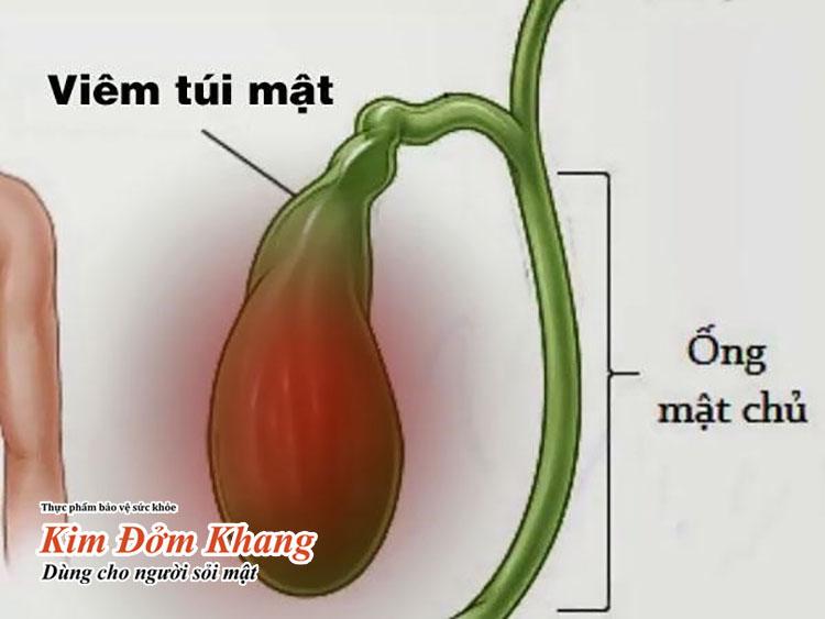 Viêm túi mật mạn tính là tình trạng túi mật bị viêm kéo dài