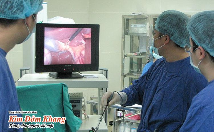 Phẫu thuật cắt túi mật thường được chỉ định trong những trường hợp viêm túi mật cấp