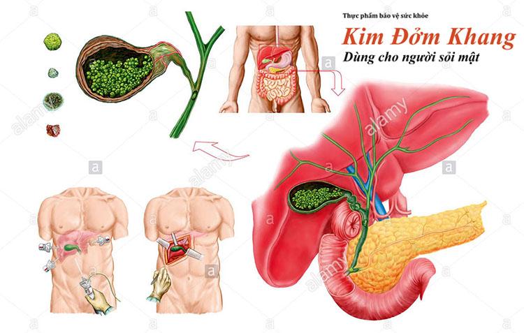 Sỏi lấp đầy trong túi mật có thể dẫn tới biến chứng viêm, nhiễm trùng túi mật