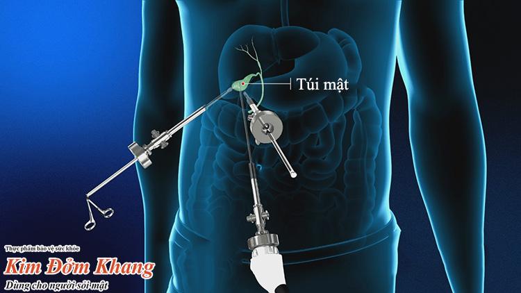 Phẫu thuật cắt túi mật nội soi