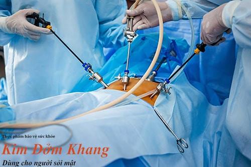 Mổ nội soi là phương pháp phẫu thuật cắt túi mật thường dùng hiện nay