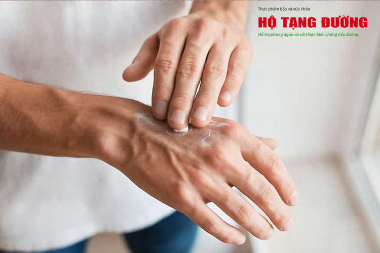 Mỗi tối, ông Trang đều thoa kem dưỡng để giữ ẩm cho da tay (Ảnh minh họa)