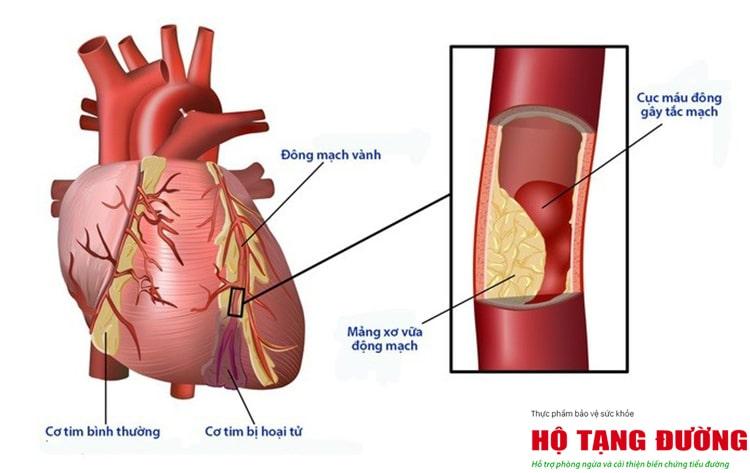 Người bệnh tiểu đường cần phòng ngừa biến chứng, đặc biệt là biến chứng tim mạch.