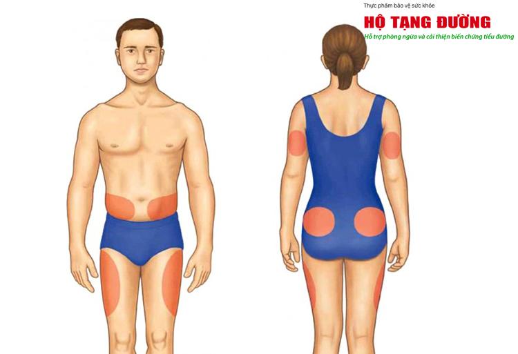 Các vị trí trên cơ thể có thể tiêm insulin.