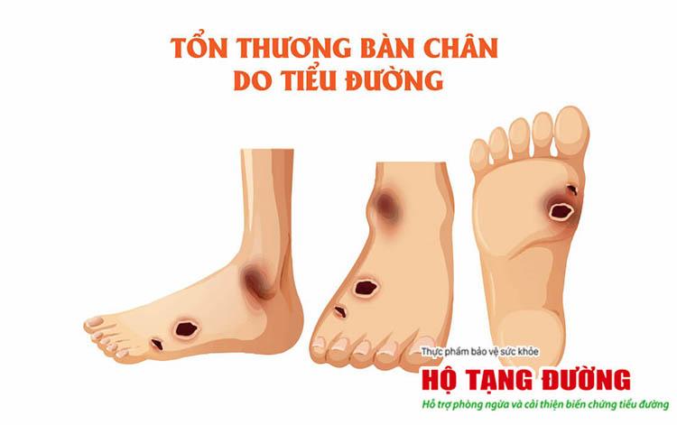 Màng mô hoại tử - dấu hiệu nhận biết biến chứng loét bàn chân