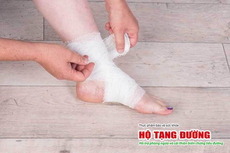 Điều trị loét bàn chân tiểu đường bằng băng gạc chuyên dụng