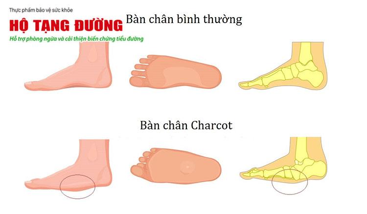 Hình ảnh biến chứng bàn chân charcot ở người bệnh tiểu đường.