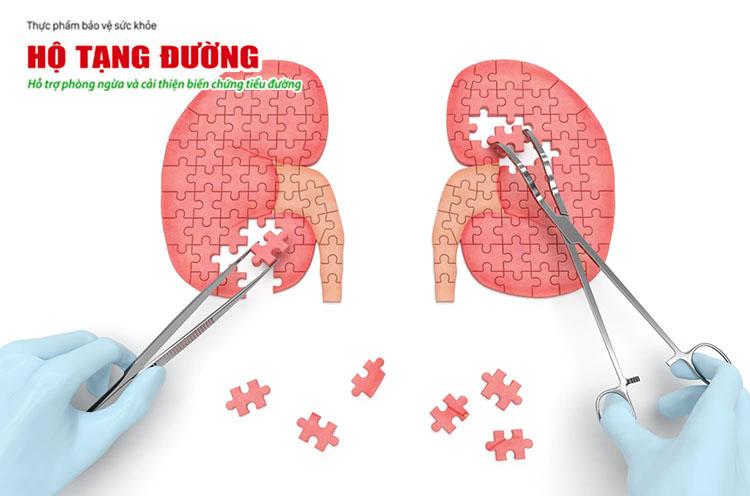 Bệnh tiểu đường có thể gây biến chứng sang thận và dẫn đến suy thận.