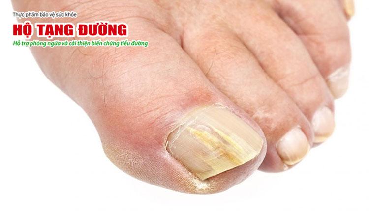 Hình ảnh móng chân bị nhiễm nấm do biến chứng tiểu đường.