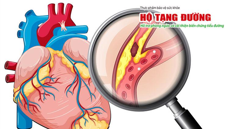 Biến chứng tim mạch của bệnh tiểu đường có thể gây xơ vữa động mạch.