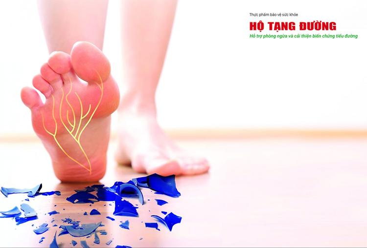 Tê bì chân tay là biểu hiện của biến chứng thần kinh tiểu đường