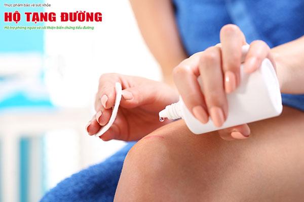 Đừng rửa vết thương bằng oxy già, hãy dùng nước muối sinh lý.