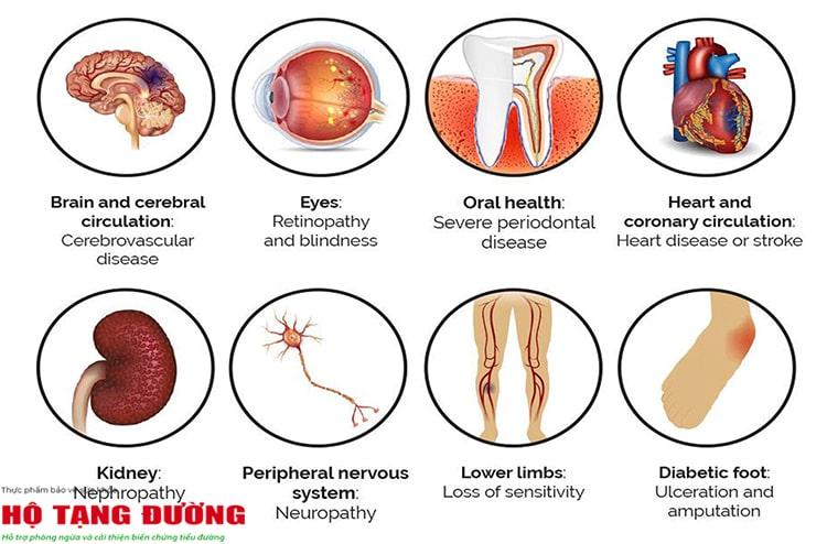 Tiểu đường có thể gây biến chứng trên khắp cơ thể.