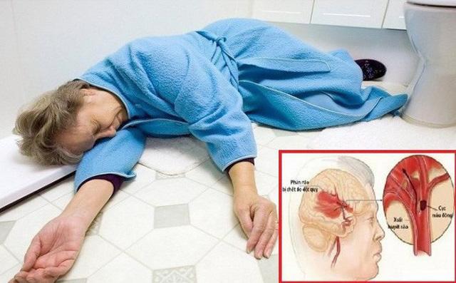 Đột quỵ là một trong những nguyên nhân gây liệt nửa người bên phải