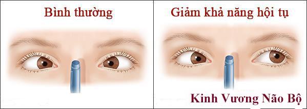 Giảm thị lực sau chấn thương có điều trị khỏi được không? TÌM HIỂU NGAY!