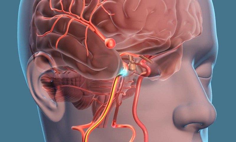 Các bệnh thường gặp gây thoái hóa thần kinh và cách điều trị, xem ngay!