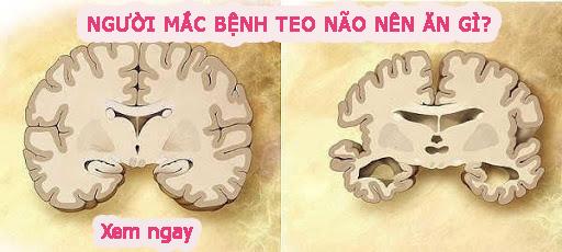 """Giải đáp thắc mắc: """"Người mắc bệnh teo não nên ăn gì?"""". TÌM HIỂU NGAY!"""