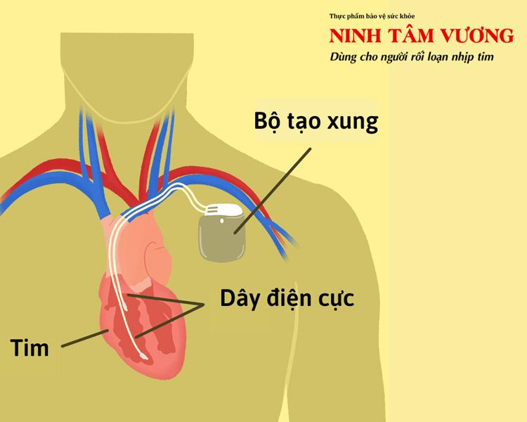 cau-tao-may-tao-nhip-gom-2-phan-chinh-day-dien-cuc-va-may-tao-nhip-.jpg