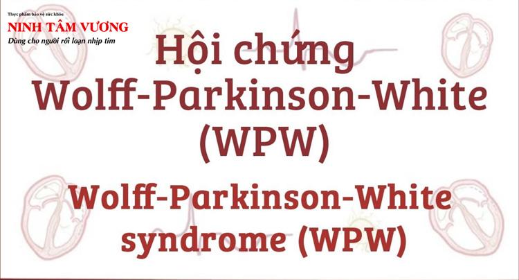 hoi-chung-wolff-parkinson-white-va-nhung-dieu-can-biet.jpg