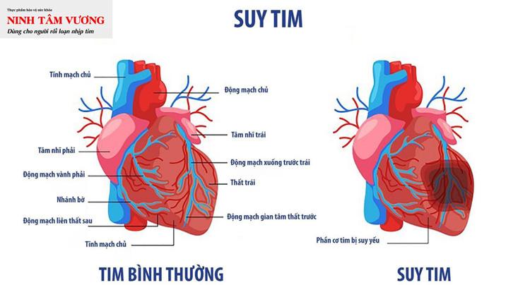 suy-tim-la-mot-trong-nhung-truong-hop-can-thiet-cay-may-khu-rung-tim.jpg