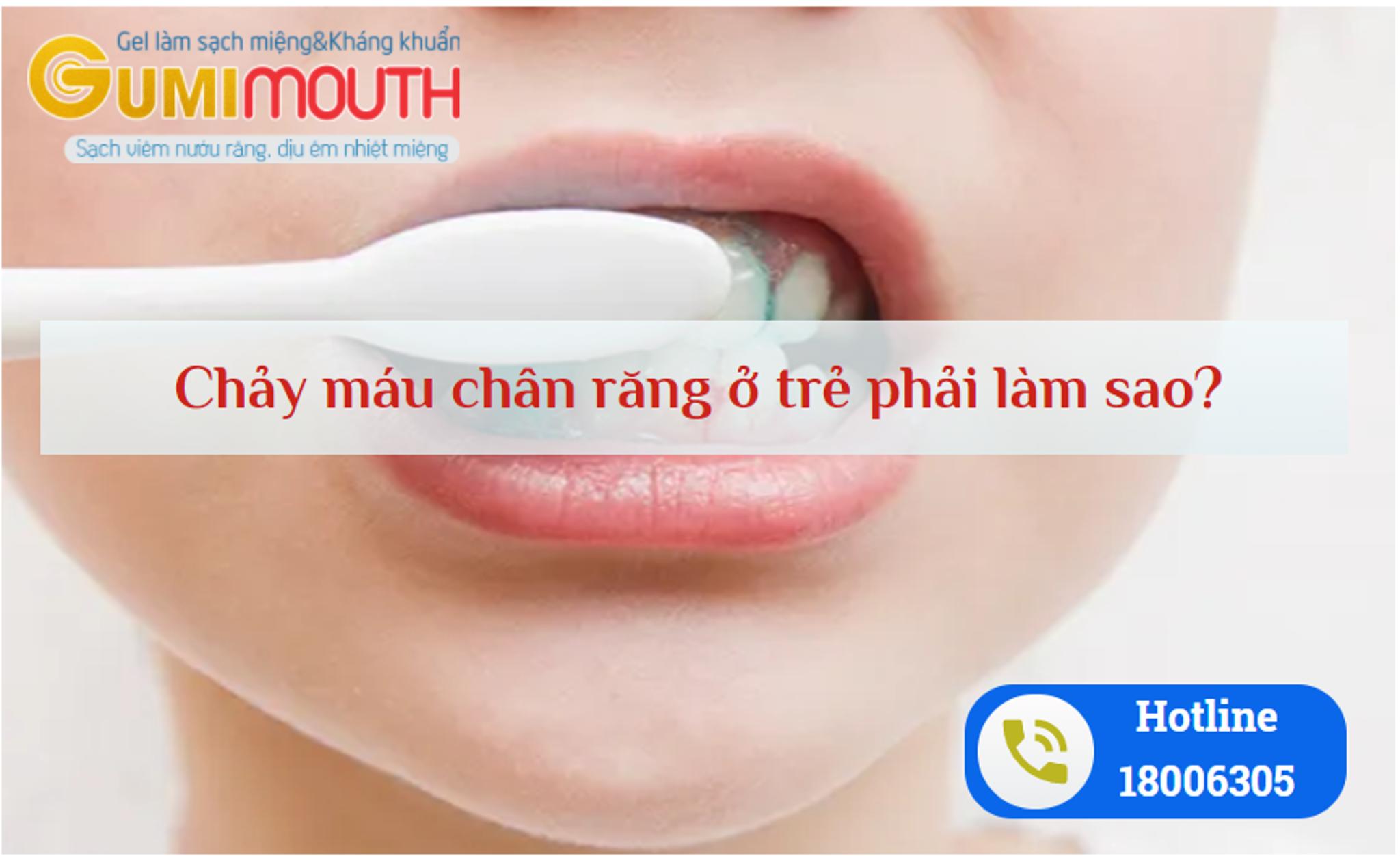 Chảy máu chân răng ở trẻ em phải làm sao? Cách khắc phục hiệu quả nhờ sử dụng sản phẩm từ thiên nhiên! CLICK XEM NGAY