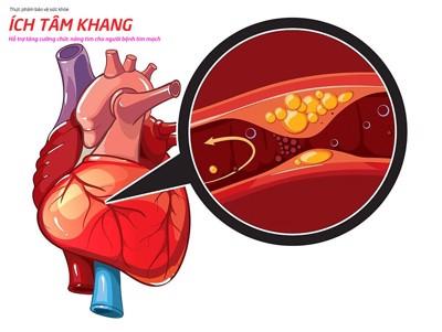 Thiếu máu cơ tim là gì? Nguyên nhân, hậu quả và cách chữa hiệu quả
