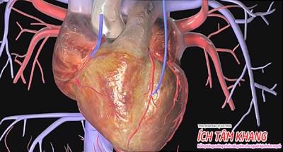 Suy tim sung huyết: Dấu hiệu cảnh báo đợt cấp & Cách giảm thiểu rủi ro
