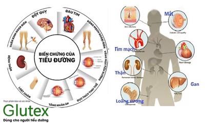 Bệnh tiểu đường là nặng hay nhẹ? Làm sao để sống lâu khi mắc bệnh tiểu đường?