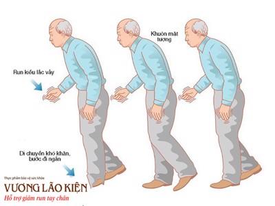 Những nguyên nhân gây bệnh Parkinson có thể bạn chưa biết!